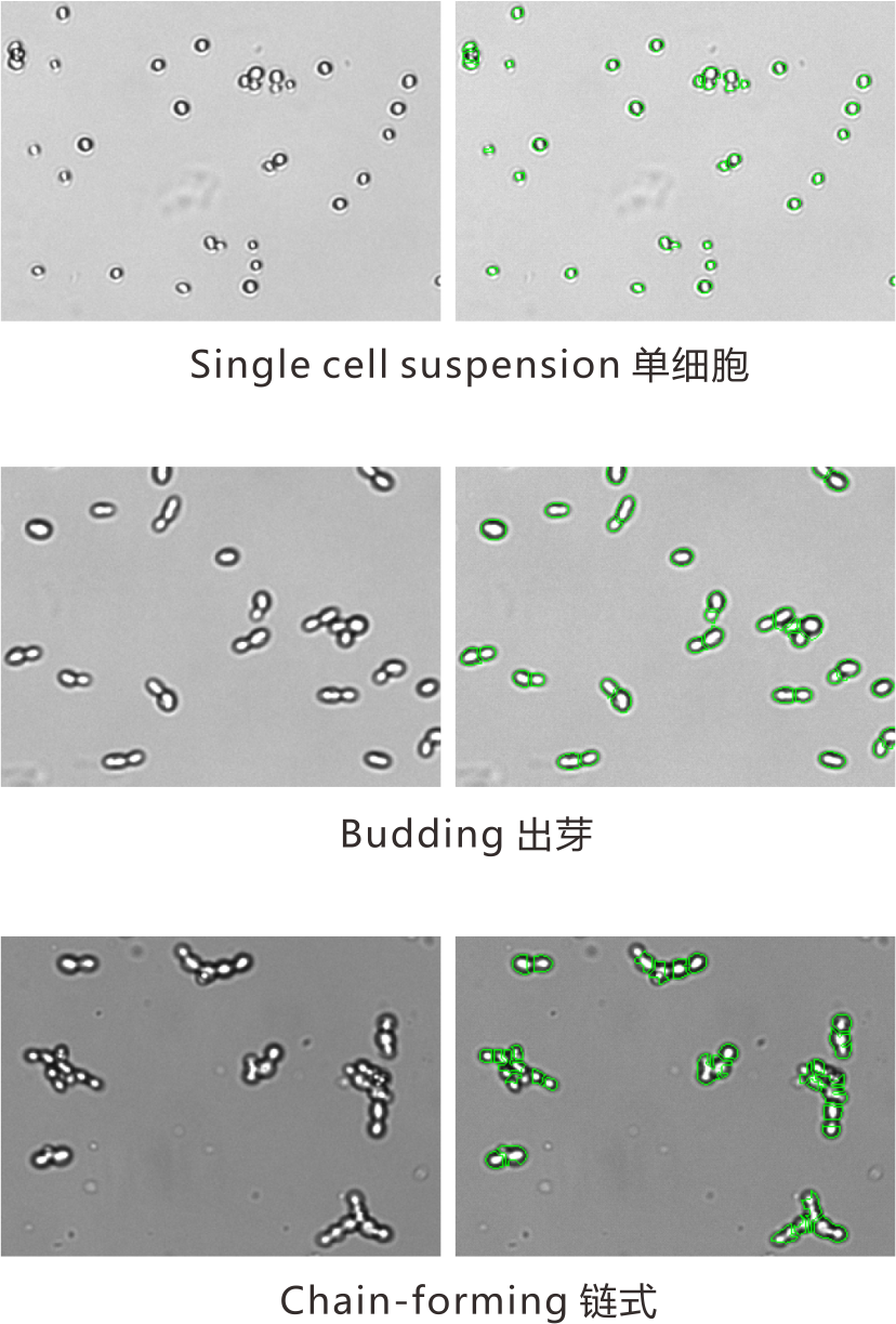 yeast BF cell counting.png